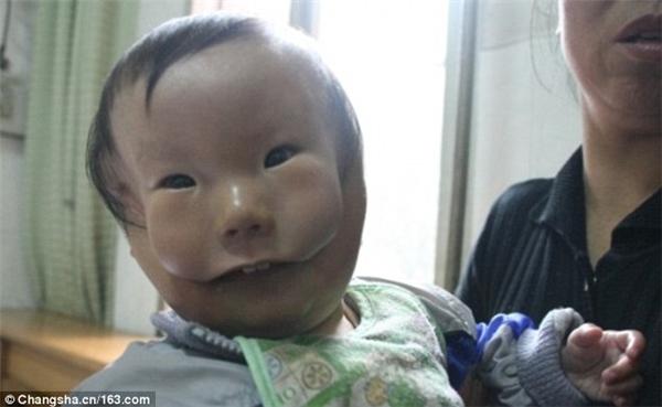 """Cậu bé đáng thương sinh ra với """"hai khuôn mặt"""""""