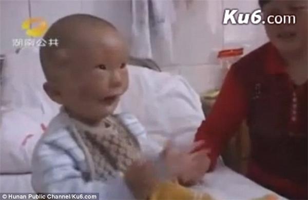 Liệu có còn ai nhớ đến cậu bé khốn khổ mang hai khuôn mặt ngày ấy?