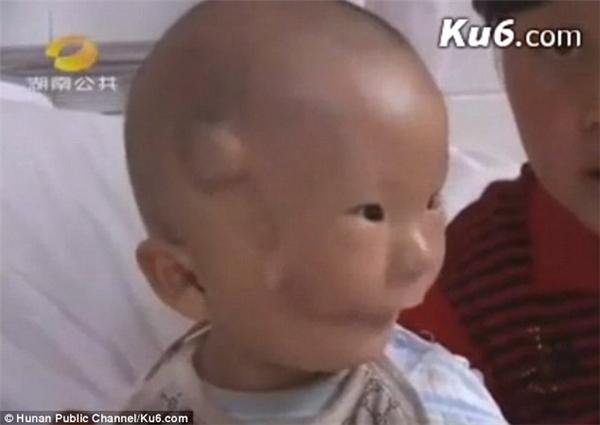 Huikang sau ca phẫu thuật đầu tiên vào tháng 5/2010 trông đã có vẻ khá hơn rất nhiều.