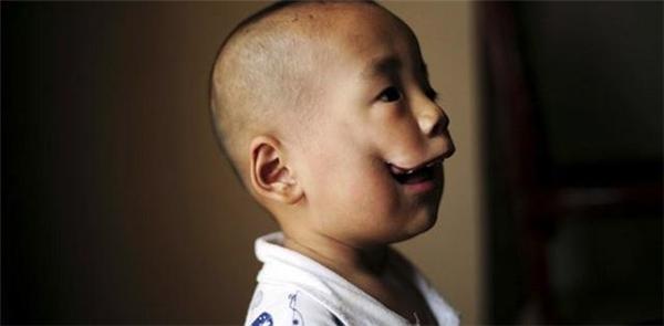 Hai tấm ảnh được cho là của Huikang sau 5 năm phẫu thuật thành công