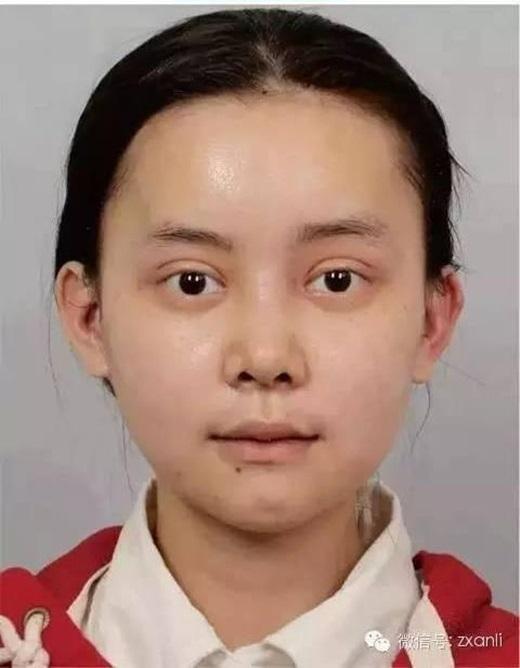 Gương mặt của cô nàng ở ngày thứ 30.