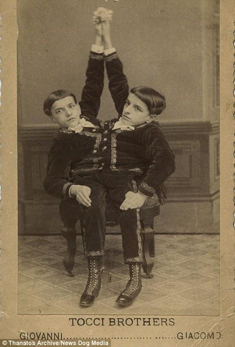 Những đứa trẻ có chiều cao khác người cũng như các cặp song sinh dính liền luôn là tâm điểm chú ý.