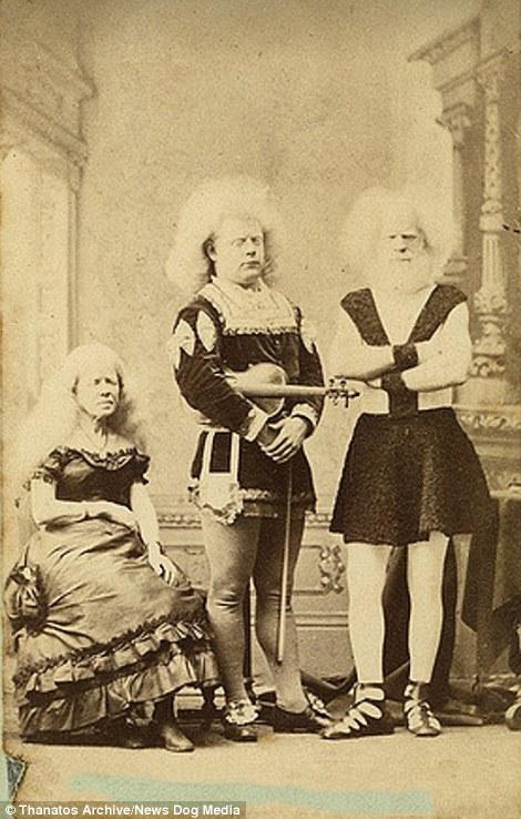 Gia đình bạch tạng Lucasie nổi tiếng thời đó.