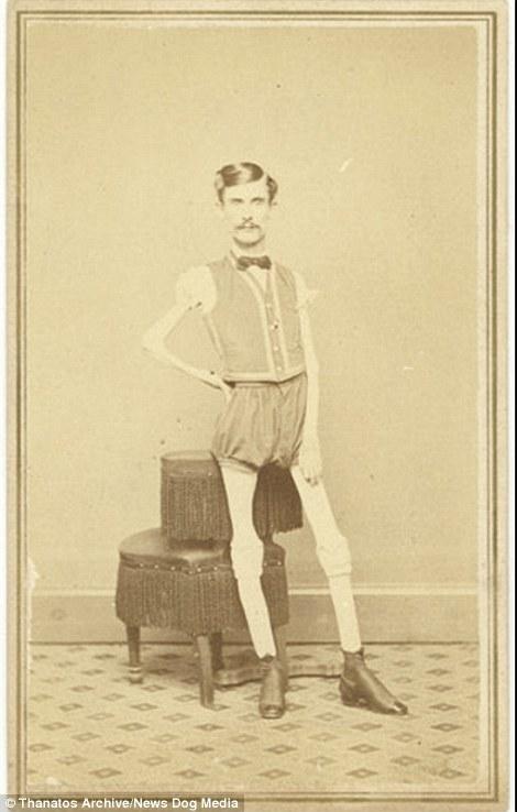 """Issac W. Sprague, còn được biết đến với biệt danh """"Bộ xương di động"""", cao 1,6m và có cân nặng chỉ vỏn vẹn 20,8kg."""
