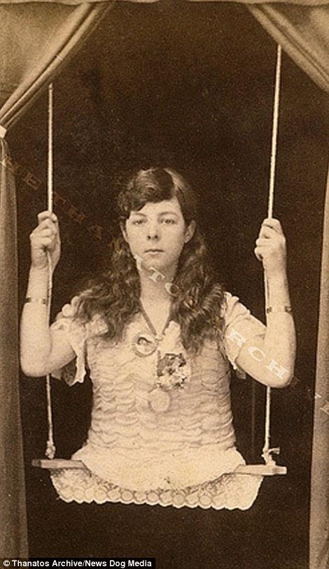 Hình ảnh một cô gái cụt 2 chân được ghi lại vào những năm 1880.