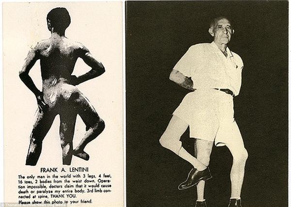 Trong ảnh là Frank Lentini được biết đến 3 cái chân từ khi mới sinh ra.