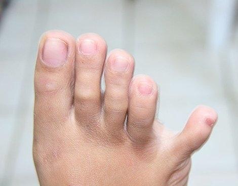 Trong tương lai, có lẽ các ngón chân cũng sẽ giảm đi, có thể sẽ chỉ còn 4 ngón thay vì 5 ngón.
