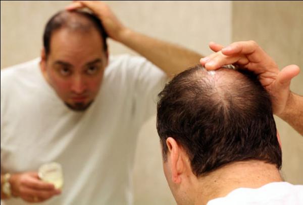 Có khi nào lông và tóc sẽ biến mất hoàn toàn?