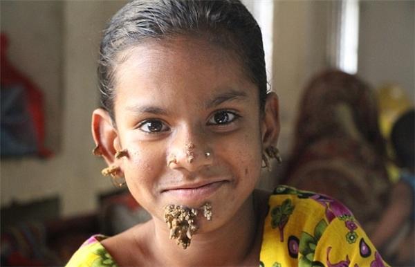 Cô bé 10 tuổi với những di chứng để lại trên má, cằm của căn bệnh người cây.