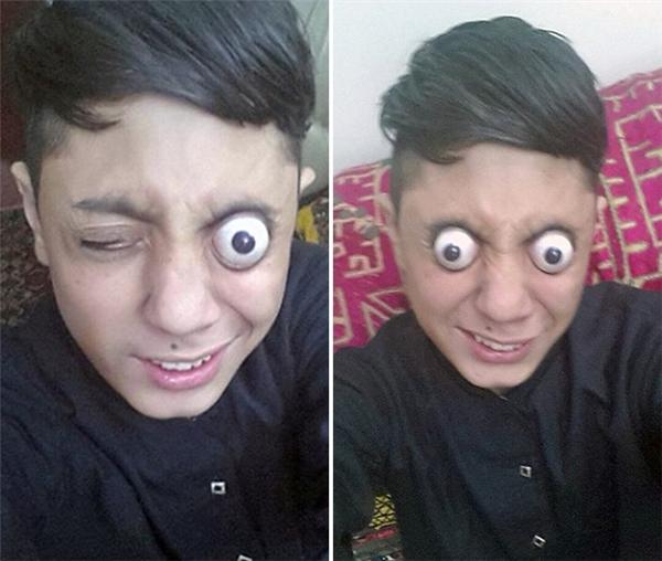 Ahmed Khan có thể tự lồi nhãn cầu của mình ra khỏi hốc mắt.