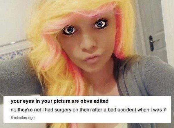 """""""Rõ ràng bạn chỉnh mắt trong hình này mà."""" """"Không hề ha, hồi năm 7 tuổi tui bị tai nạn nên phải phẫu thuật đấy."""" Bác sĩ nào mà lại có gu thẩm mỹ khác người thế này cơ chứ?"""