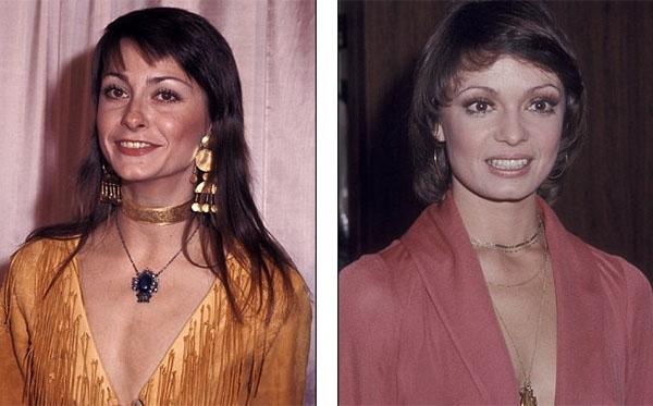 Năm 1970, vòng cổ choker được biến tấu thành dạng nhiều vòng, chuỗi dài, chuyên mix với áo xẻ sâu, nhằm tạo vẻ sexy mà không quá phản cảm.