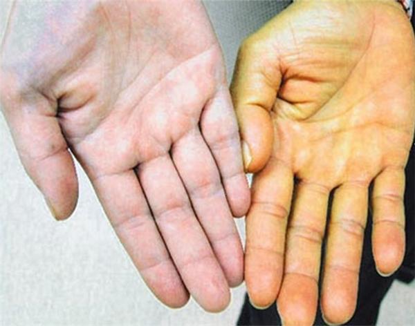 Hãy chú ý đến màu sắc của lòng bàn tay. (Ảnh: Internet)