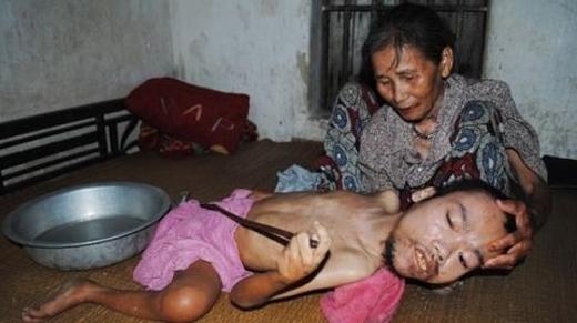 """""""Con mình răng thì nuôi rứa!"""" - bà Nguyễn Thị Vân, một phụ nữ ở miền quê nghèo Nghệ An, nghẹn ngào nói. Sinh con ra, ai chẳng muốn con mình khỏe mạnh, xinh đẹp và giỏi giang như con của bao người. Nhưng rồi số phận bạc đãi vợ chồng bà khi hết người con đầu tiên bị dị tật thì lại đến người con thứ hai bị teo cơ cứng khớp lúc tuổi vừa lên 4. Đắng cay kể sao cho xiết, nhưng rồi bà vẫn tảo tần ngày đêm, chăm sóc người con bất hạnh. Cứ thế, đã 40 năm trôi qua, dáng mẹ vẫn gầy, vẫn hôm sớm vì con, chẳng biết khi nào được báo hiếu… (Ảnh:Internet)"""