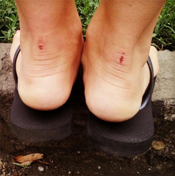 """Nàng nào mà ham hố giày cao gót thì sẽ hiểu ngay nỗi khổ chỉ vì muốn được mang giày mới đi quẩy một đêm thôi mà đành chấp nhận mang dép lào suốt một tuần sau đó vì chân đau không tả nổi, lại còn """"trầy vi tróc vẩy"""" đáng thương đến thế này nữa chứ."""