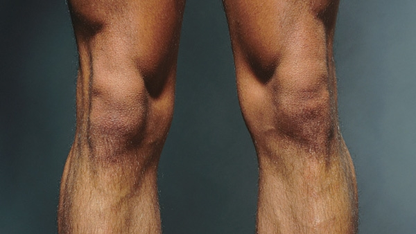 Chỉ có nhà cơ thể học mới đoán đúng 8/10 ảnh cắt bộ phận cơ thể này