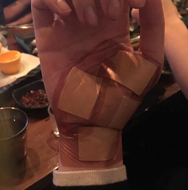 Ảnh chụp bàn tay băng kín khiến nhiều người cho rằng cô nàng thật sự mắc bệnh tâm lí.