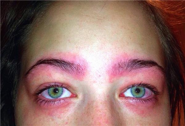 Cô gái trẻ suýt nữa rơi vào cảnh mù lòa chỉ vì dị ứng thành phần trong thuốc nhuộm.