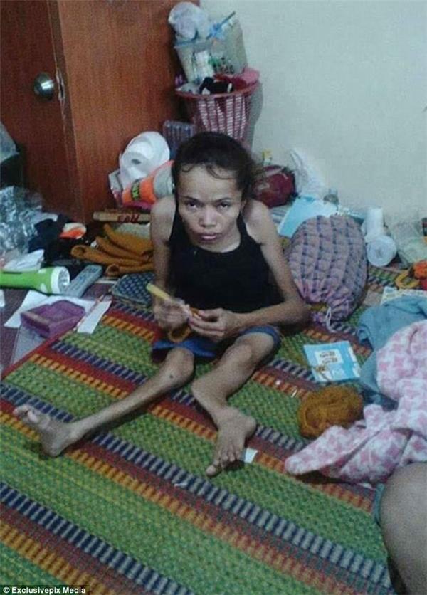 Jroonsi, đến từ Yasothon (thuộc vùng đông bắc Thái Lan), không may mắn khi mắc dị tật xương từ khi vừa chào đời. (Ảnh: Daily Mail)