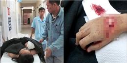 Đạp xe đi học, nữ sinh lớp 8 bị chém đứt gân tay