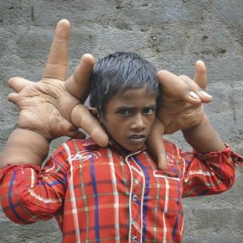 Bệnh lạ khiến cậu bé 8 tuổi có đôi tay khổng lồ