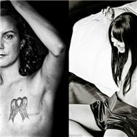 Những bức ảnh xúc động về bệnh nhân ung thư vú sau phẫu thuật