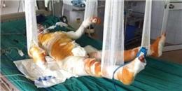 Xót xa trước cháu bé 5 tuổi bị bỏng nặng đang nguy kịch