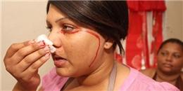 Bé gái 15 tuổi chảy máu mỗi lần khóc hoặc đổ mồ hôi
