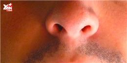 Kinh hoàng 100 con dòi đóng ổ trong mũi người