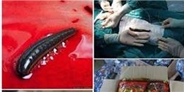 Thực hư chuyện 'đỉa sống trong bụng người' ở Bệnh viện Bạch Mai