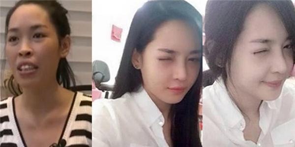 Cô gái Nam Định  không nhận ra chính mình  sau phẫu thuật thẩm mỹ