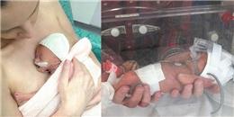 Hy hữu em bé sinh non nhỏ bằng bàn tay sống sót diệu kỳ