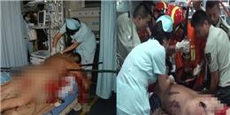 Kinh hoàng: Người đàn ông bị thanh sắt lớn đâm xuyên cơ thể