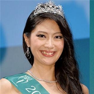 Tân Hoa hậu Nhật hứng chỉ trích vì răng quá khấp khểnh