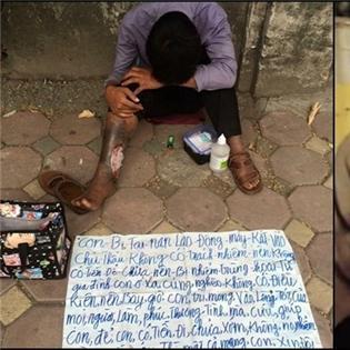 Hà Nội: Đau đầu với câu chuyện người đàn ông bị hoại tử chân