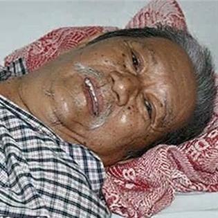 Nghệ sĩ Mạc Can đang một mình chống chọi với bệnh thủng bao tử