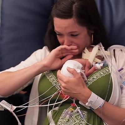 Nghị lực sống phi thường của em bé sinh non chỉ nặng 700gr