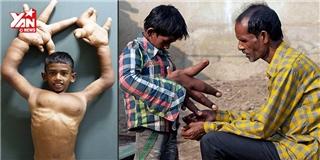 Rớt nước mắt với hoàn cảnh cậu bé có đôi tay to nhất thế giới