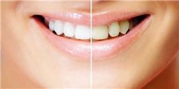 'Bí kíp thần thánh' giúp cho hàm răng sáng bóng