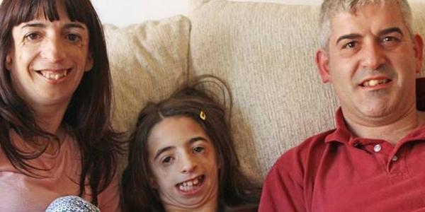 Xót xa hai mẹ con cùng mắc hội chứng xương gò má