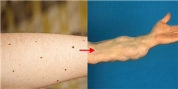 Cảnh báo ung thư da từ số lượng nốt ruồi trên cánh tay