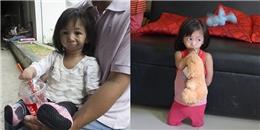 Khâm phục nghị lực phi thường bé gái 3 tuổi không có miệng và tay chân