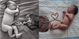 Siêu ấn tượng loạt ảnh bé yêu với dây rốn gắn liền nhau thai