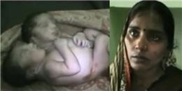 Xót xa trước cảnh bé 2 đầu vừa chào đời không lâu đã lìa trần