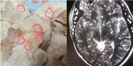 Ngỡ ngàng cơ thể cô gái ngập tràn kí sinh trùng vì ăn thịt lợn sống