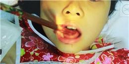 Hãi hùng bé gái 9 tuổi bị đôi đũa cắm xuyên qua lưỡi