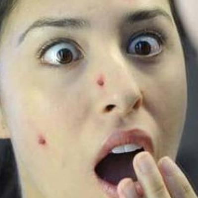 8 dấu hiệu trên gương mặt cảnh báo bệnh nguy hiểm