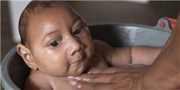 Du khách Australia nhiễm virus Zika sau khi trở về từ VN