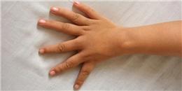 Ngón cái thành ngón trỏ - hội chứng thừa đốt ngón tay