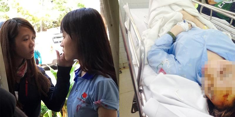 Nữ sinh nghẹn ngào kể lúc bị tạt axít ở Sài Gòn